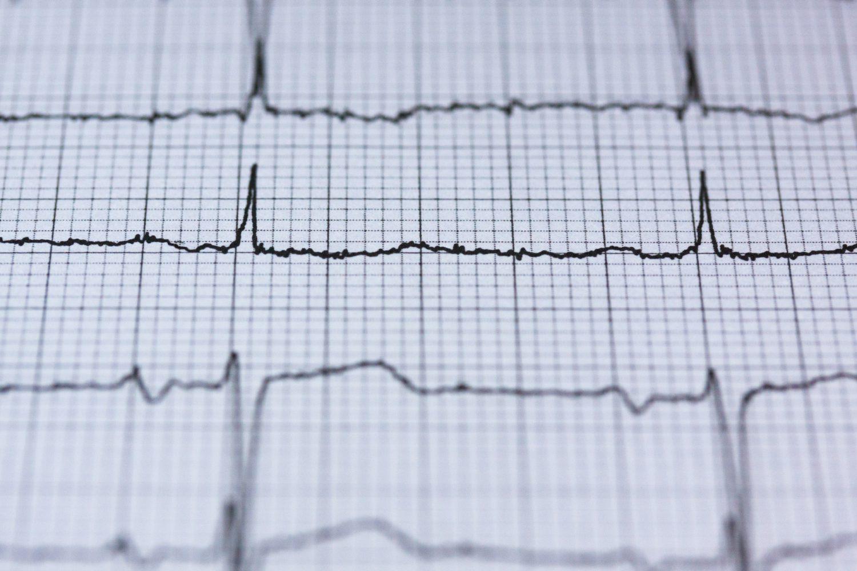 Elettrocardiogramma - Salute (Foto Pexels - Pixabay) Imc